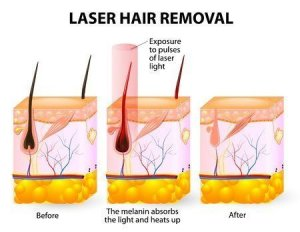 Laser Vs Ipl The Cosmetic Clinic