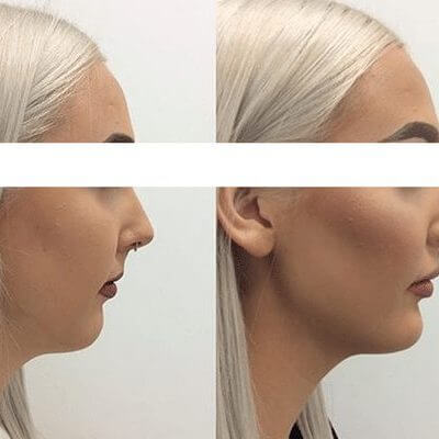 Dermal Filler - The Cosmetic Clinic