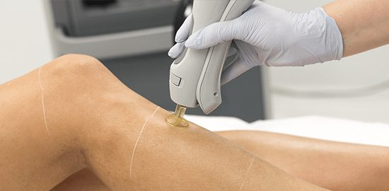 Laser Hair Removal - The Cosmetic Clinic
