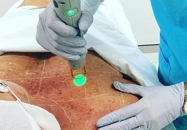Laser-pigmentation