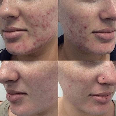 Medi-Aesthetic Peels Before and After 1