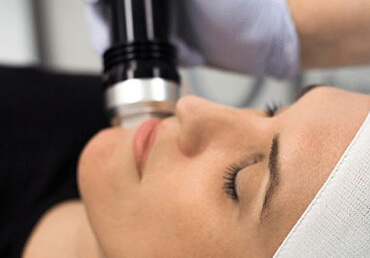 Fractional RF Treatments
