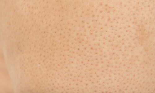 Enlarged Pores The Cosmetic Clinic
