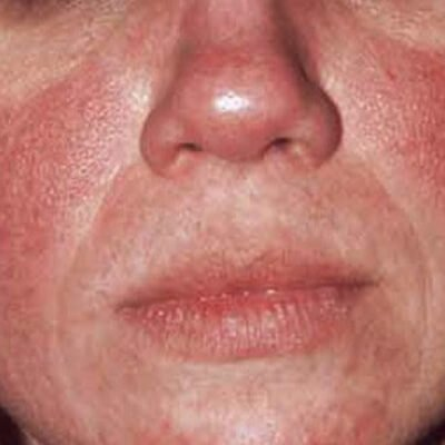 Redness Rosacea The Cosmetic Clinic