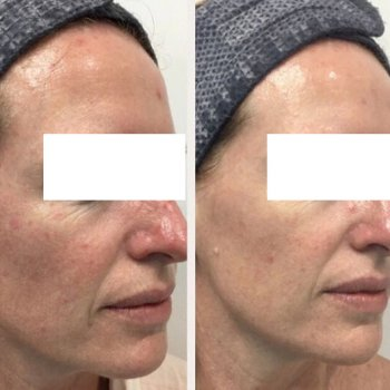 Pigmentation - The Cosmetic Clinic