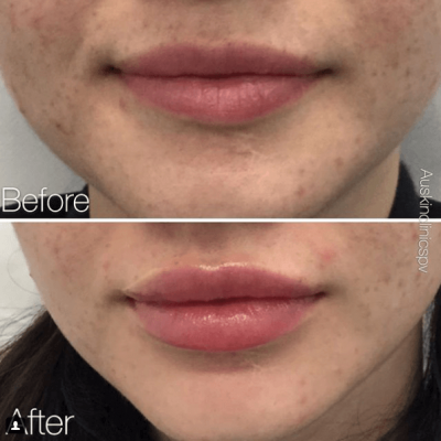 Lip Filler, Plump lips