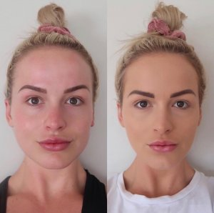 Did you know Injectables aren't just for Lips or Wrinkles! - The