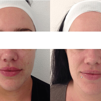 Micro-Needling - The Cosmetic Clinic